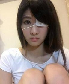 妹子眼睛受傷了